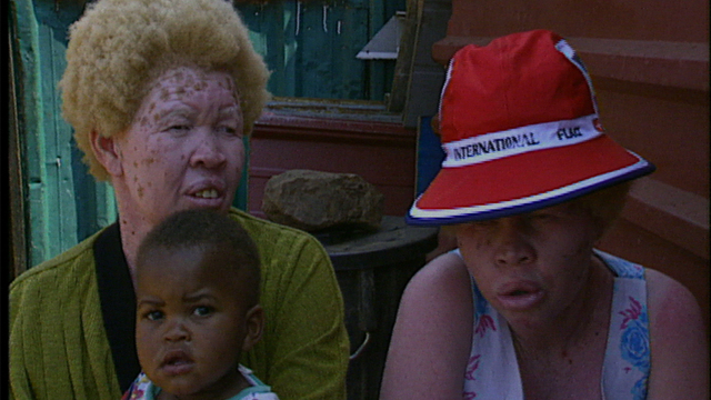 Black Albinos